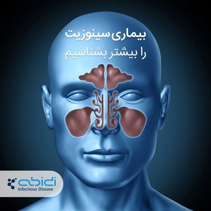 بیماری سینوزیت را بیشتر بشناسیم.